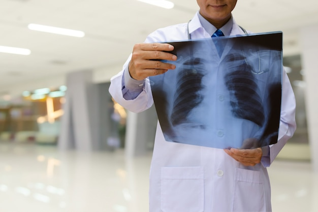 Мужской доктор осматривает рентгеновский снимок в больнице