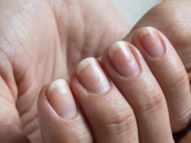 Поврежденные ногти после гель-лака. закройте