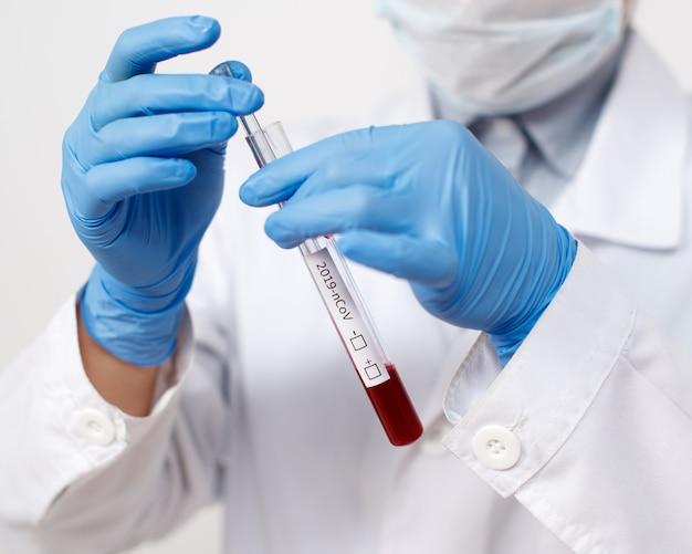 疫学者はコロナウイルスの血液検査を受けます。