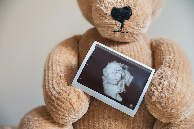 Плюшевый мишка и положительный тест на беременность крупным планом детская игрушка медведь, пинетки, тест.