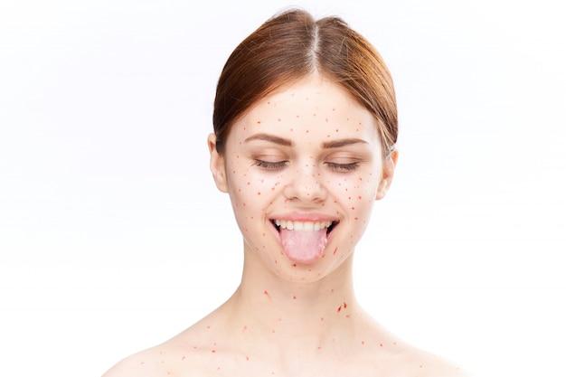 女性の発疹と顔、にきび、水痘の炎症