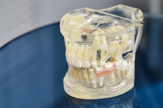 Ортодонтическая стоматологическая модель челюсти или зубов человека