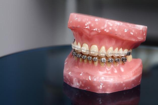 Модель челюсти или зубов человека с металлическими проводными зубными скобами