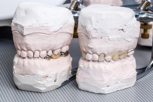 灰色の歯科補綴物歯型、粘土人間の歯茎モデル