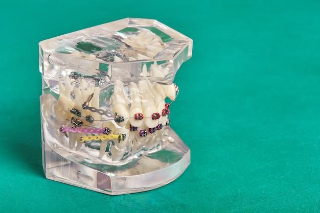 Ортодонтическая модель зубов человека с имплантатами, брекеты