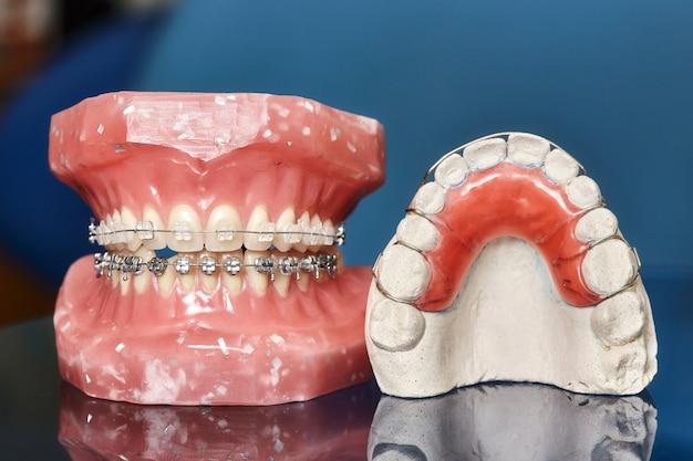 ワイヤーで縛られた金属製の歯列矯正器を備えた歯模型
