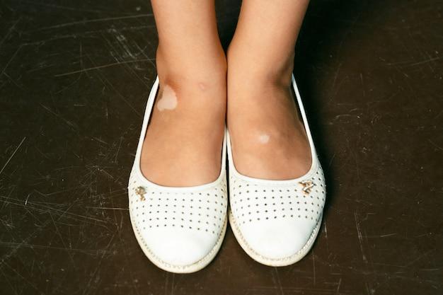白斑の子供の足