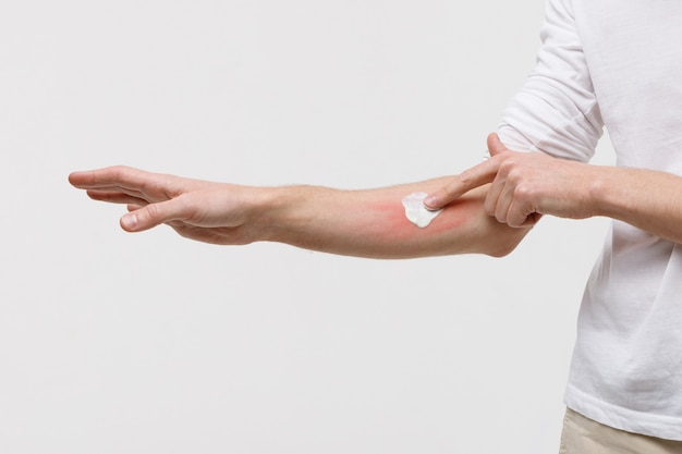 蚊に刺されに対してうねりの肌にクリームを適用する男