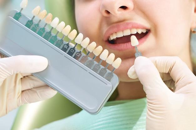若い女性の美しい笑顔と白い歯。インプラントの色合いや歯のホワイトニングのプロセスに合わせる。歯のパレット。