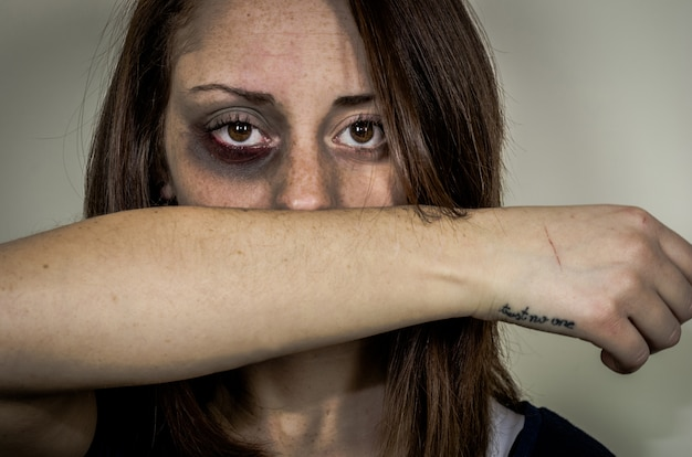 深い表情-白人の人々-女性に対する暴力についての概念で見ている顔に傷を持つ悲しい打たれた少女