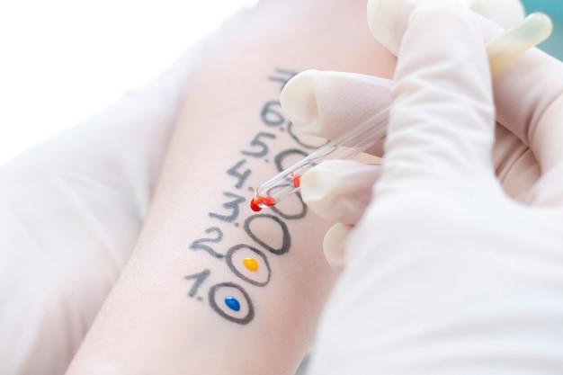 手持ちのアレルゲン検査。クリニックでのアレルゲン皮膚テストの手順。