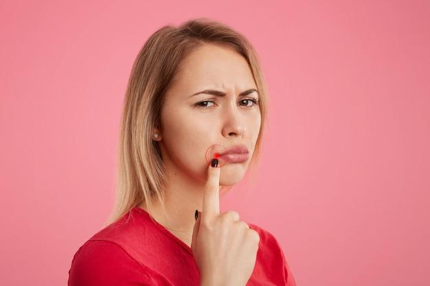Недовольная молодая самка с несчастным видом, имеет оральный герпес, указывает на рану возле губ, стоит боком на фоне розового. концепция людей, ухода за кожей и проблем со здоровьем.
