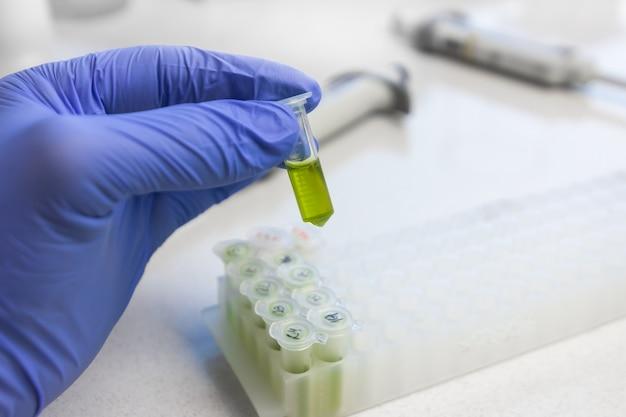 青い手袋の手に近づいて、緑の液体抽出物を含むマイクロチューブを保持します。ウイルスに対する新しいワクチンまたは薬物の合成。
