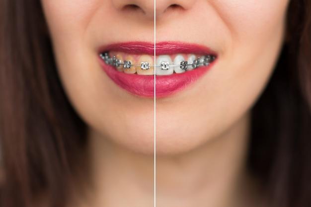 Отбеливание зубов до и после. зубы женщины до и после отбеливания. счастливый улыбающееся лицо женщины крупным планом. концепция стоматологического здоровья.