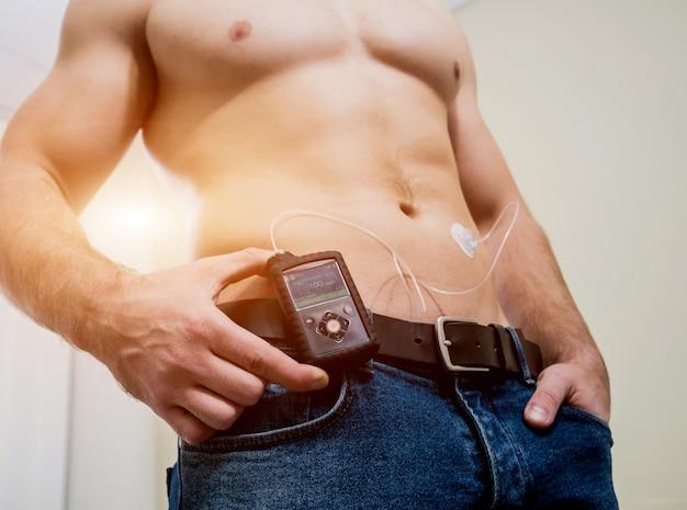 Диабетик с инсулиновой помпой, подключенной к животу и держащей инсулиновую помпу