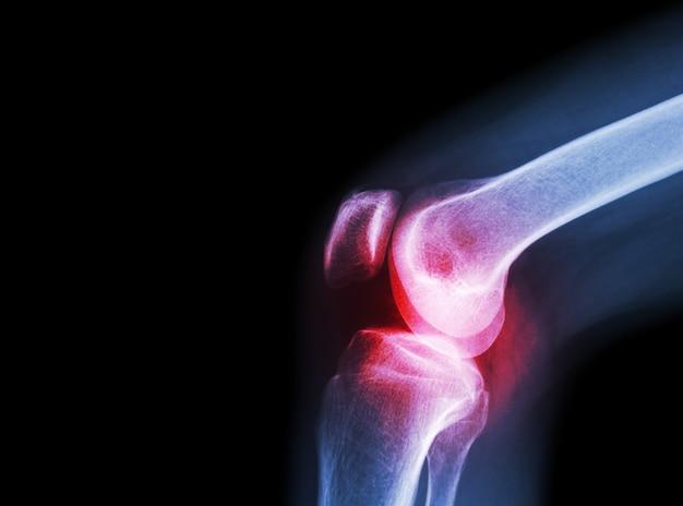 Пленка рентгеновского коленного сустава с артритом (подагра, ревматоидный артрит, колено остеоартрита)