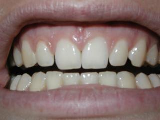歯、口、歯茎