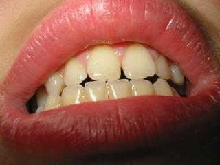 Рот, губы