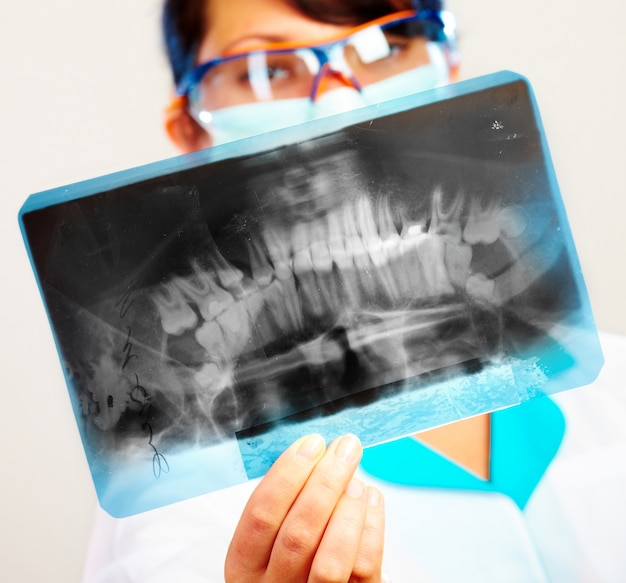 Женщина-врач с рентген челюсти (фокус на рентген)