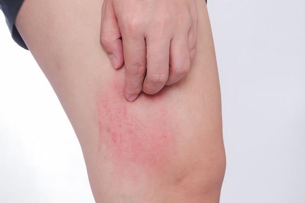 スクラッチ蚊の刺されたアレルギーの皮膚