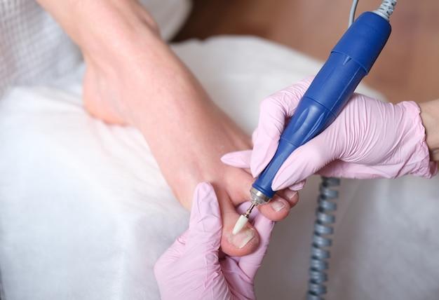 Подология лечения. подиатр лечит грибок ногтя на пальце ноги. врач удаляет мозоли и лечит вросший ноготь. аппаратный маникюр. здоровье, концепция ухода за телом.