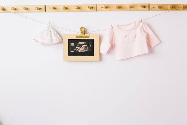 子供服と超音波画像