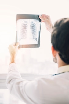 Крупный план врача, глядя на рентгеновский снимок груди