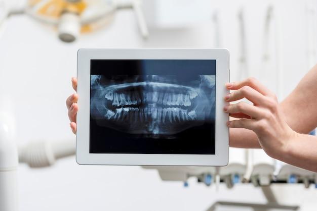 Руки крупного плана держа таблетку с рентгеновским снимком