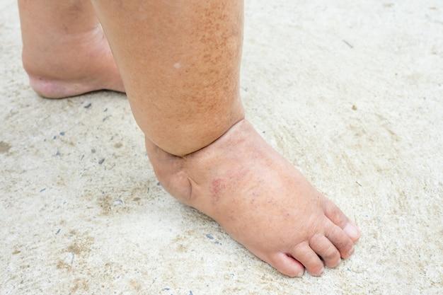 糖尿病の人々の足、鈍いと腫れ。糖尿病の毒性のために