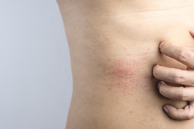 敏感肌の赤い斑点のかゆみを食べ物や害虫のアレルギー症状として掻く男の手