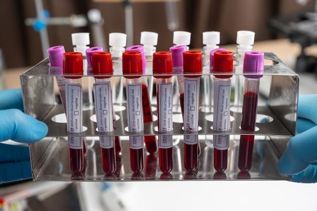 医療機器。医療研究所での血液サンプル検査