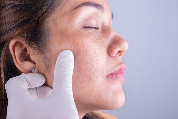 女性の顔の皮膚を閉じる