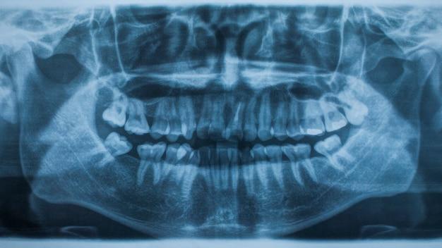 Панорамный рентгеновский снимок зубов