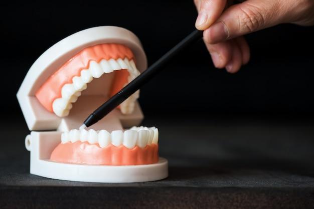歯科医のペンを下臼歯に