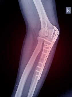 肘肘頭骨折は、プレートとネジで固定することができます。