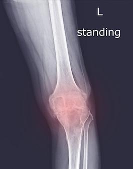 Рентген коленного сустава (вид стоя) обнаружение дегенеративного изменения левого колена на красной отметке.