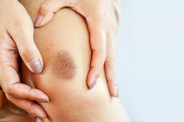 Женщина страдает от ушиба колена