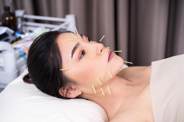 顔に鍼治療を受けている女性