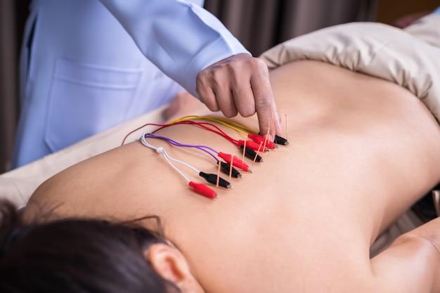 背中に電気刺激装置で鍼治療を受けている女性
