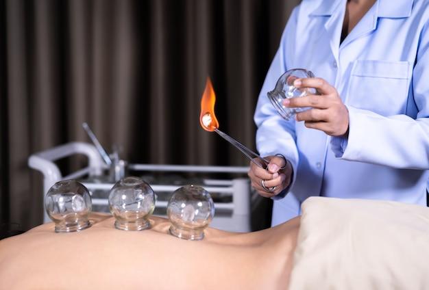 女性の背中にカッピング治療のための火とガラスカップ