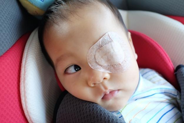 アジアの幼児は斜視です。