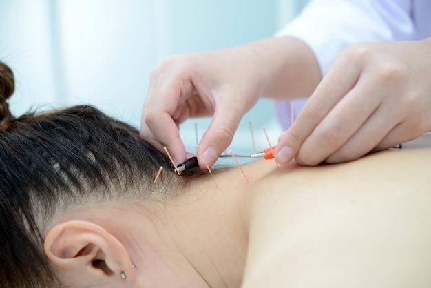 電気鍼。伝統的な中国の鍼と患者の体の電気鍼