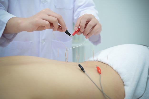 Электроакупунктура. традиционная китайская акупунктура и электроакупунктура на теле пациента.