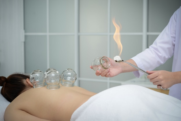 カッピング治療、伝統的な漢方治療のために患者の背中に配置するカップを準備する医師。