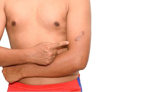 皮膚のケロイドの傷跡。