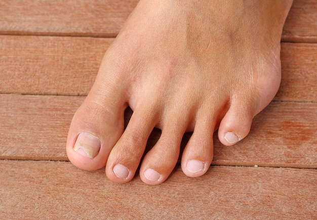 足の爪が破損し、爪が壊れた