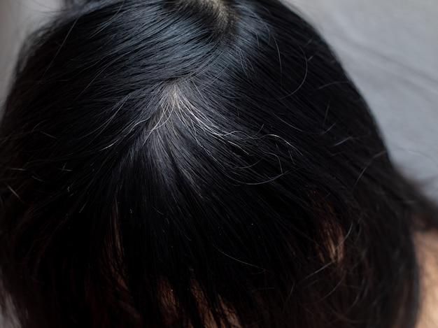 若い女性は彼女の白い髪の根を示しています