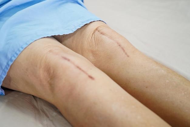 アジアの年配の女性患者は彼女の傷の外科的膝関節全置換術を示しています。