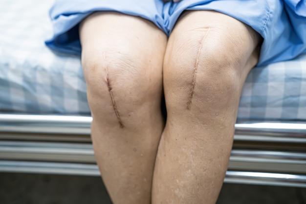 アジアの年配の女性患者は、彼女の瘢痕の手術による人工膝関節全置換術を示しています。