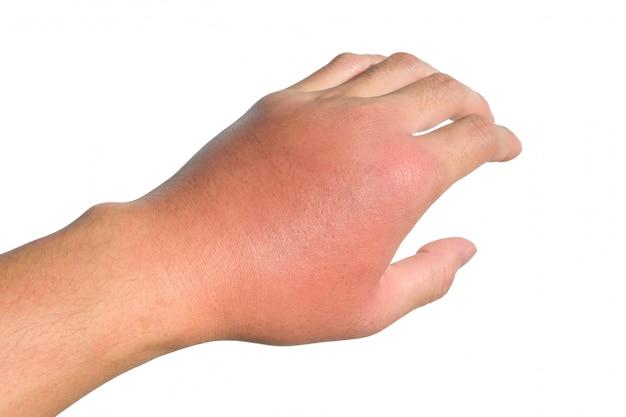 手の炎症、腫れ、発赤は感染を示しています。虫刺され。左側の蜂巣炎